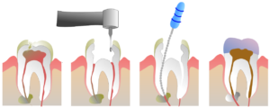 Dentist doesn't finish root canal, teenager's tooth gets infected with complications. – MyRecentCases